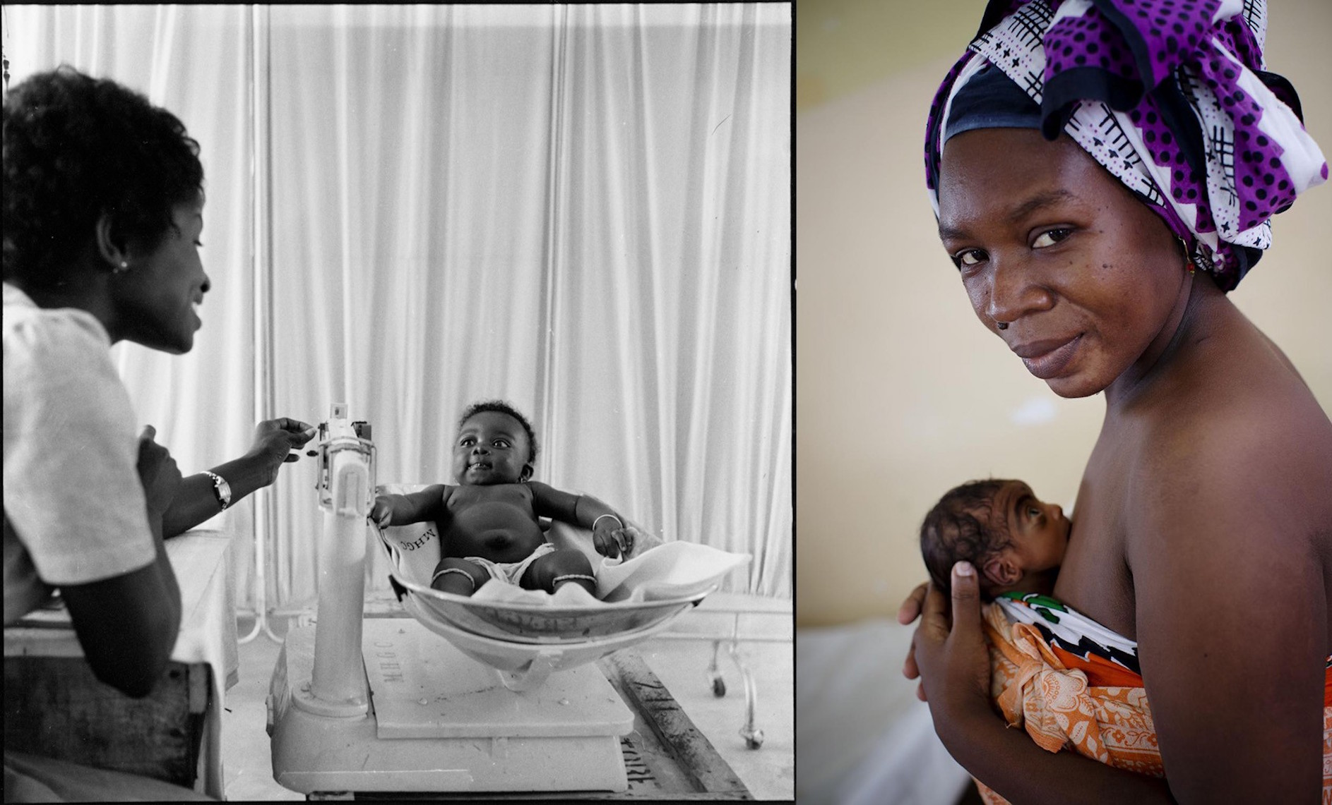 (Left) In 1960 in Ghana, a midwife weighs a child on a scale in a comprehensive long term rural health plan emphasising training of medical personnel in Tuma. (Right) In 2014, a woman cradles her preterm baby using 'kangaroo care' against her skin to keep