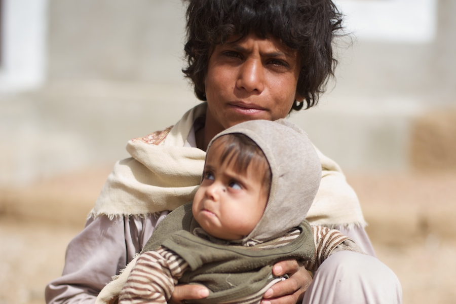 Children in Yemen: malnutrition. A boy holds his malnourished brother in Kitaf.