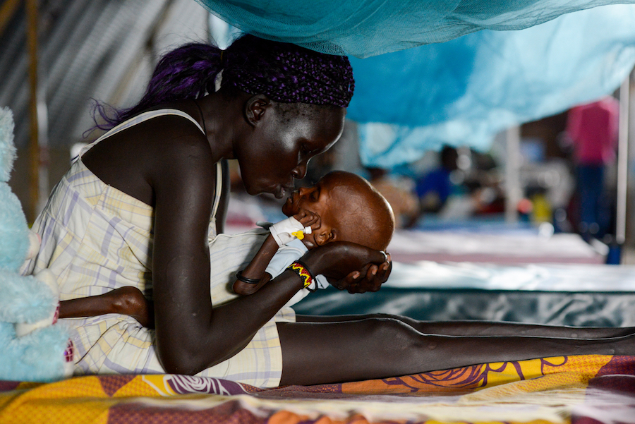 UNICEF provides treatment for malnutrition in South Sudan.