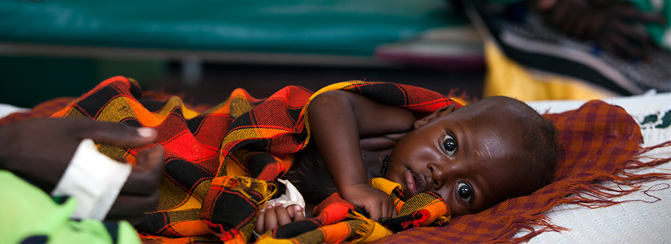 On 14 July, a severely malnourished baby lies in the paediatric unit at the District Hospital in Lodwar, capital of Turkana District, in Rift Valley Province. In this predominantly pastoralist region, many families are selling their livestock to buy incre