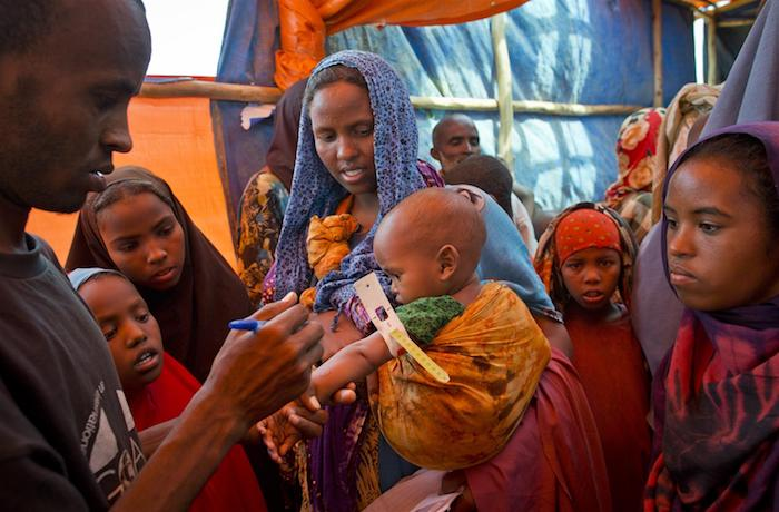 A health worker uses a mid-upper arm circumference (MUAC) band to measure a baby's arm during a UNICEF-assisted nutritional screening in the Buramino refugee camp in Ethiopia's Somali region.