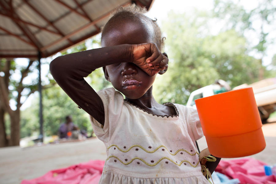 Diagnosed with severe acute malnutrition, Maria, 2, drinks a ration of therapeutic milk rich in nutrients at a UNICEF-supported inpatient stabilization center in Juba, South Sudan in October 2017.