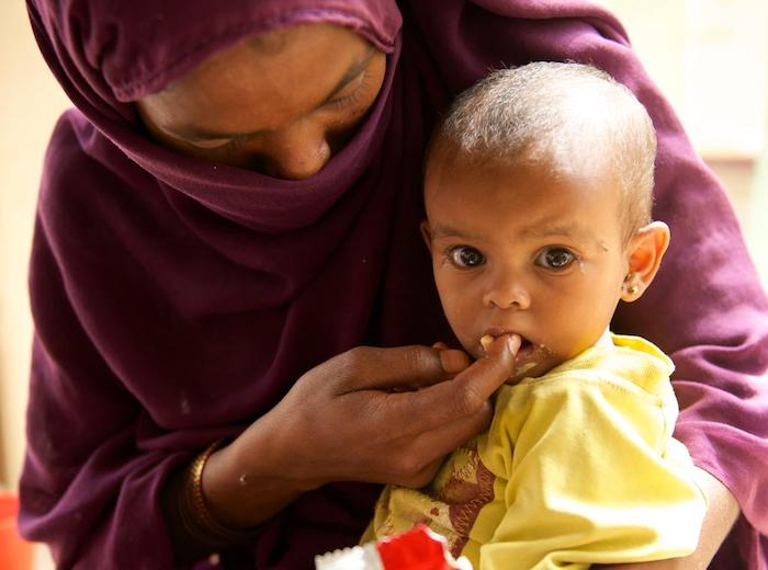 unicef, unicef usa, malnourished children, world hunger, sudan, darfur, child malnutrition