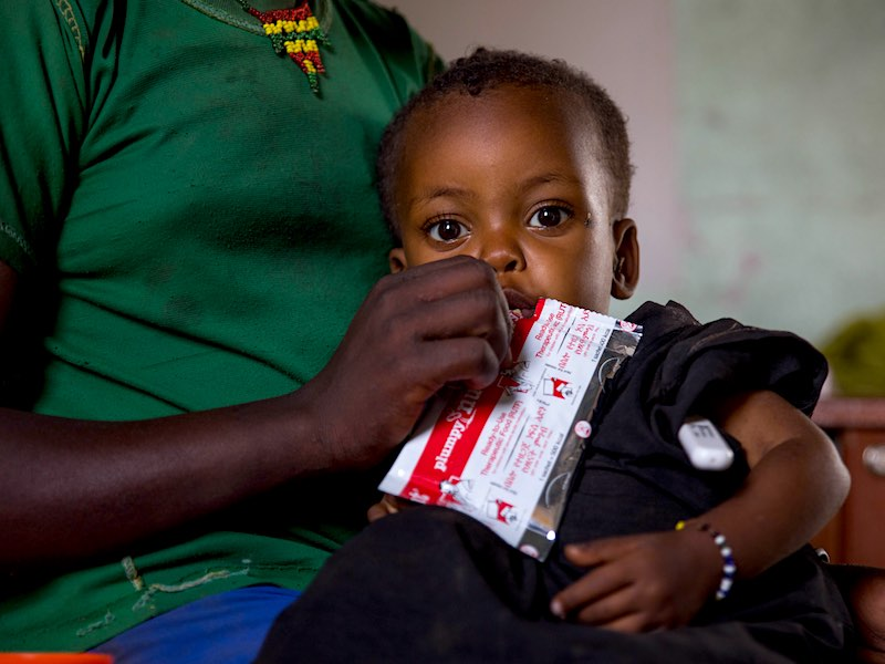 An acutely malnourished child in Ethiopia gets ready-to-use-therapeutic food (RUTF).