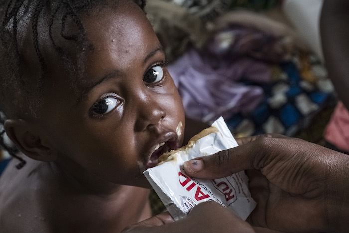 "UNICEF procures 80% of the world's Ready-to-Use Therapeutic Food (RUTF), a nutrient-packed peanut paste so effective at saving malnourished children that it's been called ""a malnutrition miracle."" Here, Mboumbou, receives treatment with RUTF, at the nutri"