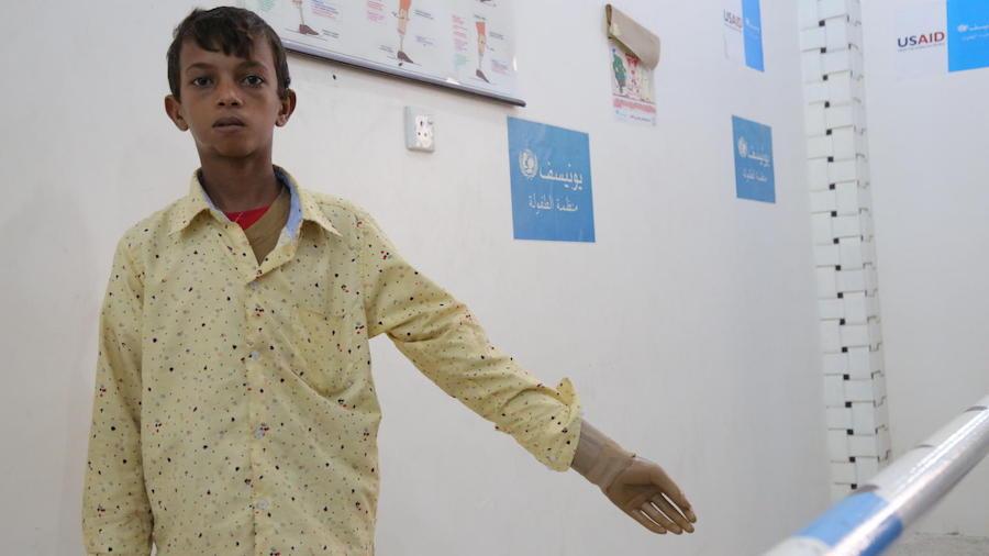 UNICEF, Yemen, humanitarian crisis, Aden, prostheses center