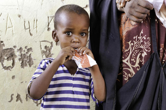 Three-year-old Ahmed eats Ready-to-Use Therapeutic Food (RUTF), a tasty peanut paste used to treat severe acute malnutrition, at a UNICEF-supported mobile nutrition clinic in a displacement camp in Ainabo, in the Sool region of Somaliland.