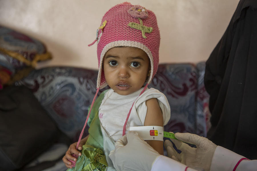 A UNICEF-supported community health worker checks a baby's mid-upper arm circumference to see if she is malnourished in Yemen's Hajjah Governate in March 2019.