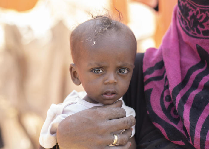 Saud Humadi, mother of five, holds her severely malnourished baby, Saeed, in a camp for internally displaced persons in Lahj governorate, southern Yemen, 2019.