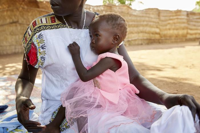 Suffering from severe acute malnutrition, 14-month-old Adut sits on her mother's lap at the UNICEF-supported Gabat nutrition center in Aweil, South Sudan, May 2019.