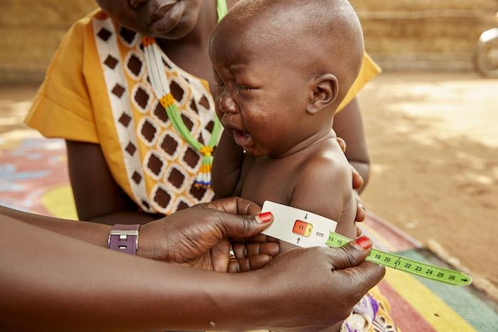 Eight-month-old Akot's mid-upper arm circumference measurement helped confirm he was suffering from severe acute malnutrition in Aweil, South Sudan, May 2019.