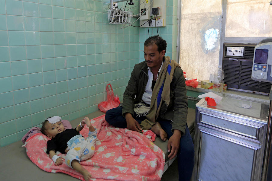 A Yemeni father sits with his child receiving treatment at the malnutrition ward of al-Sabeen Maternity and Child Hospital in the Huthi-rebel-held Yemeni capital Sanaa, on March 21, 2021.