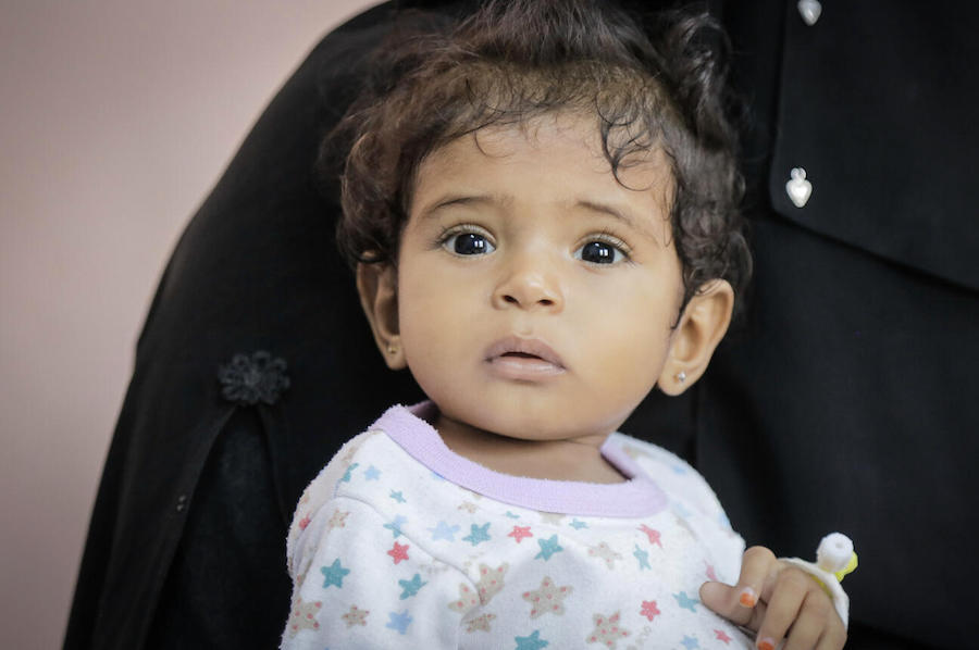 On April 20, 2021, 1-year-old Afnan is treated for malnutrition at the UNICEF-supported Therapeutic Feeding Center in Al Marawi'ah district, Hudaydah Governate, Yemen.