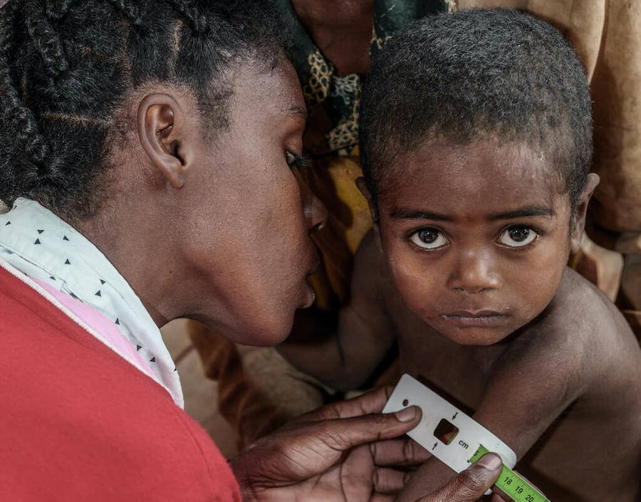 A health worker measures the arm circumference of 3-year-old Mara at the UNICEF-supported Ambohimalaza Basic Health Center in Ambovombe, Androy Region, Madagascar.