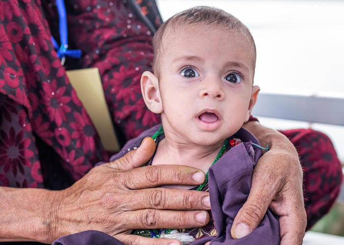 On September 28, 2021,15-month-old Javid is being treated severe acute malnutrition at the UNICEF-supported Inpatient Therapeutic Feeding Center in Herat Regional Hospital, Afghanistan.