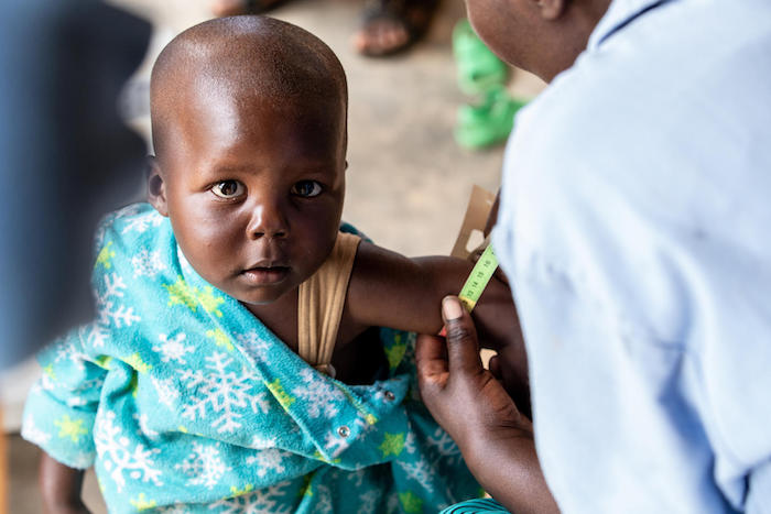 A UNICEF-supported community health worker in Gakenke District, Rwanda measures a child's mid-upper arm circumference to screen for signs of malnutrition.