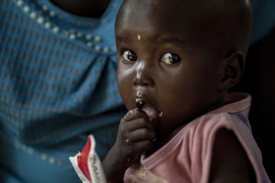 Ahok Deng, 20 months old, had measles, she could not eat and was very sick. At 20 months her weight stands at 5.6 kg. There has been an unprecedented outbreak of measles around Tharkueng village. While Ahok is being treated at the nutrition center (OTP) f