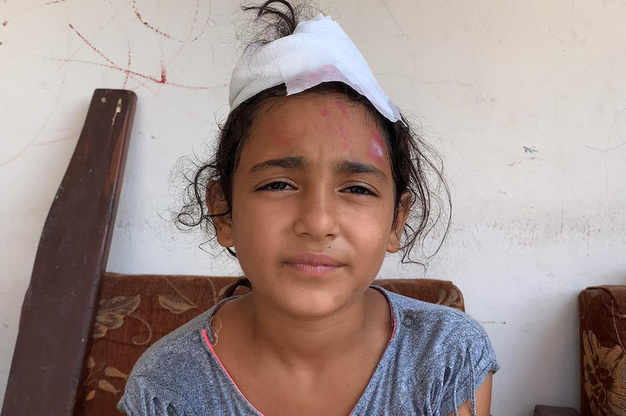 Mira, 10, was injured by the deadly explosion that rocked Beirut, Lebanon on August 4, 2020.