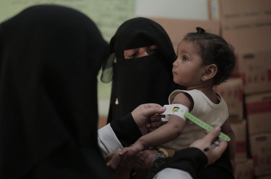 On January 12, 2020, 9-month-old Nour is checked for malnutrition by medical staff at a UNICEF-supported health center in Sana'a, Yemen.
