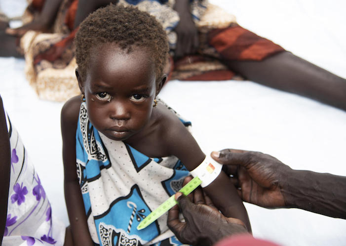 Four-year-old Koli being screened for malnutrition at a UNICEF-supported health center in Pibor, South Sudan in September 2020.
