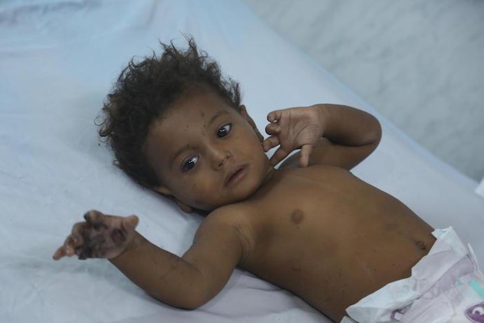 unicef, unicef usa, yemen, al hudaydah, humanitarian crisis