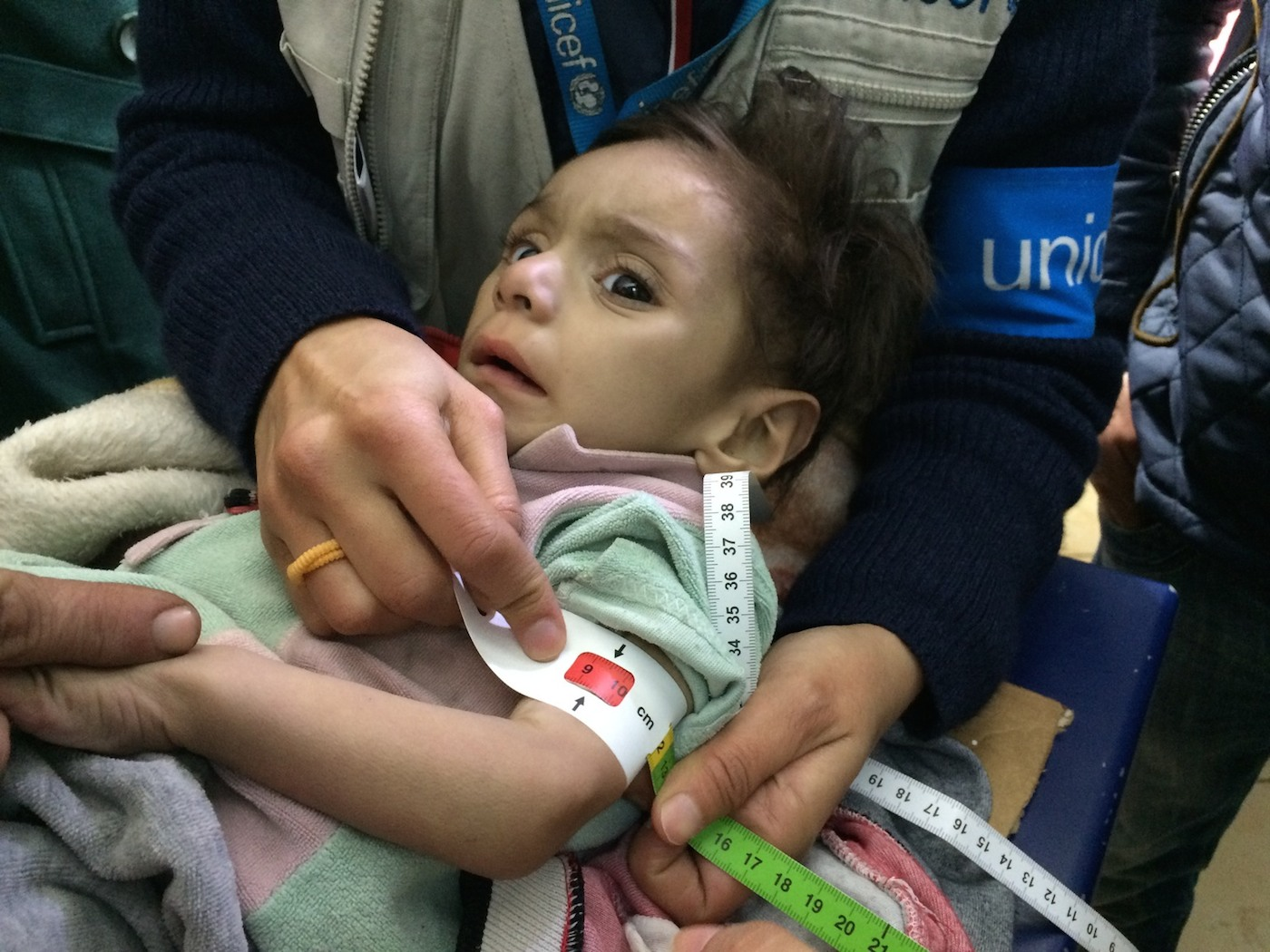 #SyriaCrisis End the Suffering On 14 January 2016, a child is screened for malnutrition at a make-shift hospital in Madaya. The UNICEF team and staff of the World Health Organisation were able to screen 25 children under five for malnutrition.