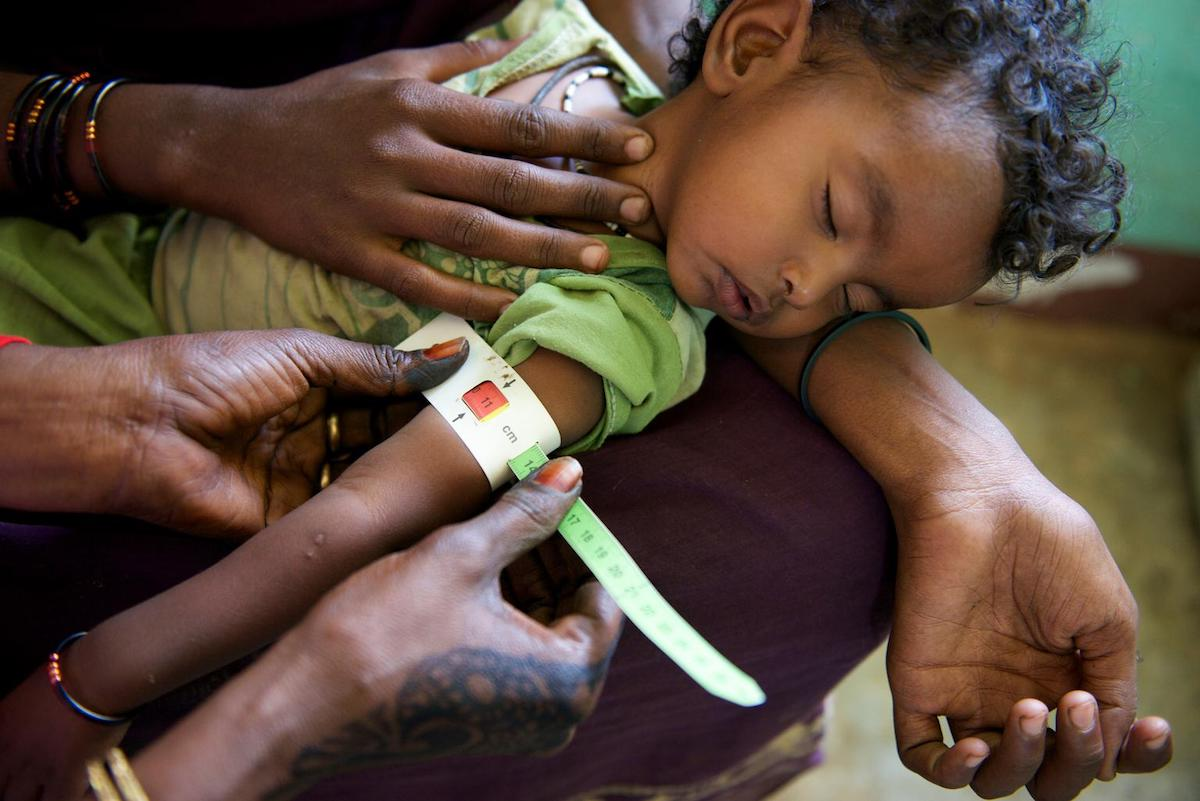 Sudan, Unicef, malnourished children, fight hunger, unicef usa