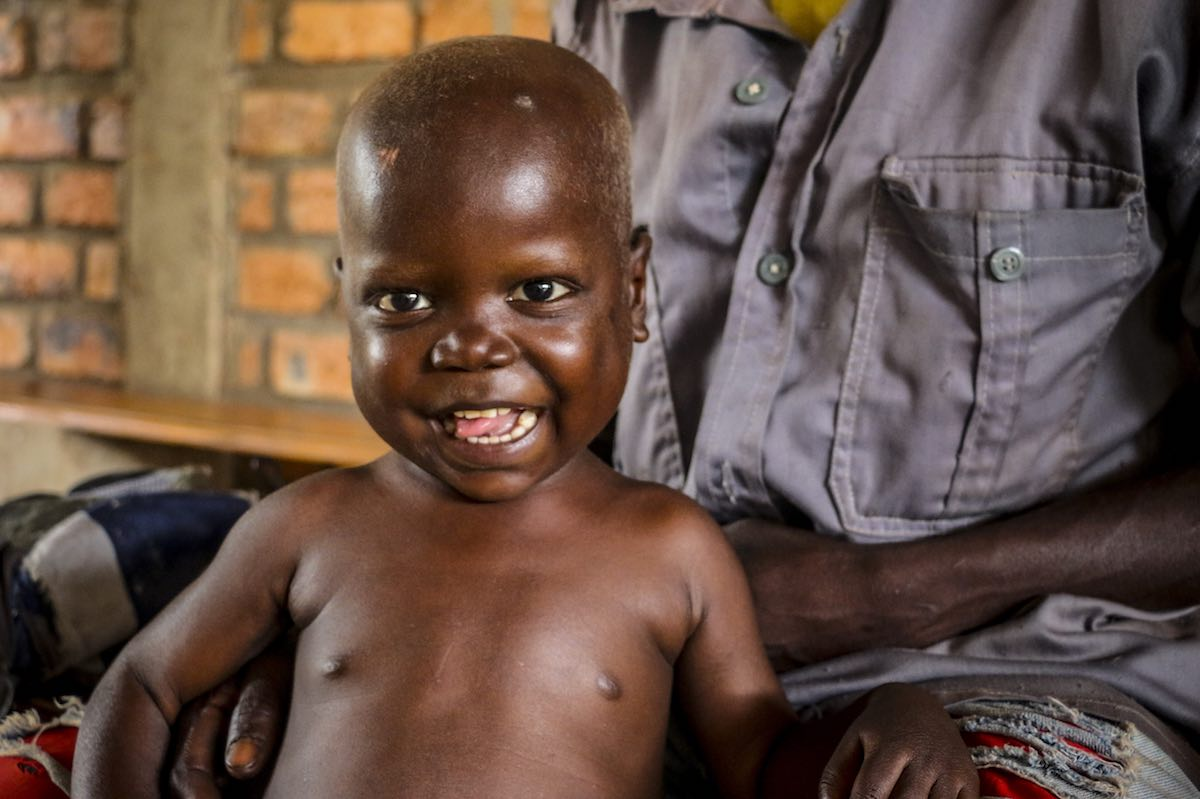 On 16 August 2018 in the Central African Republic, Pierre Mbassissi returns with his father for his follow up outpatient treatment at the Centre de Santé Saint Joseph, on the outskirts of Bangui.