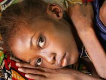 Amelie, 12, lies in her hospital bed at Bangui Paediatric Hospital in Bangui, the capital. She is suffering from bone cancer, for which no drugs are available in the country.