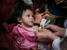 A medical practitioner uses a Mid Upper-Arm Circumference (MUAC) measuring tape on a child suffering from Severe Acute Malnutrition (SAM) in Bani Al-Harith, Sana'a, Yemen, Tuesday 14 February 2017.