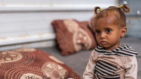 One-year-old Ghosson was treated for severe acute malnutrition at UNICEF-supported Al Sadaqa Hospital in Aden, Yemen in 2021.