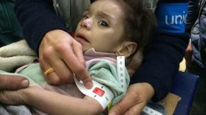 A malnourished child in Madaya, Syria.