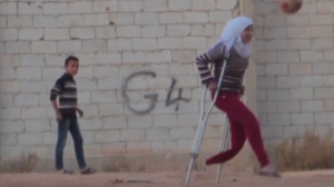 Saja, 12, lost her leg in a bombing. She has been displaced in Aleppo, Syria for 3 years.