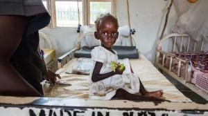 Diagnosed with severe acute malnutrition, Maria, 2, was treated at a UNICEF-supported health center in Juba, South Sudan in October 2017.