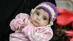 A 4-month-old girl recovering from malnutrition at a UNICEF-supported hospital in Sana'a, Yemen.