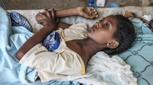 A young girl caught in the crossfire during fighting in Ethiopia's Tigray region recovers from her injuries at her home in Humera.