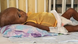 One of many children being treated for acute malnutrition at the UNICEF-supported pediatric unit of the Hospital Immaculee Conception in Les Cayes, Haiti