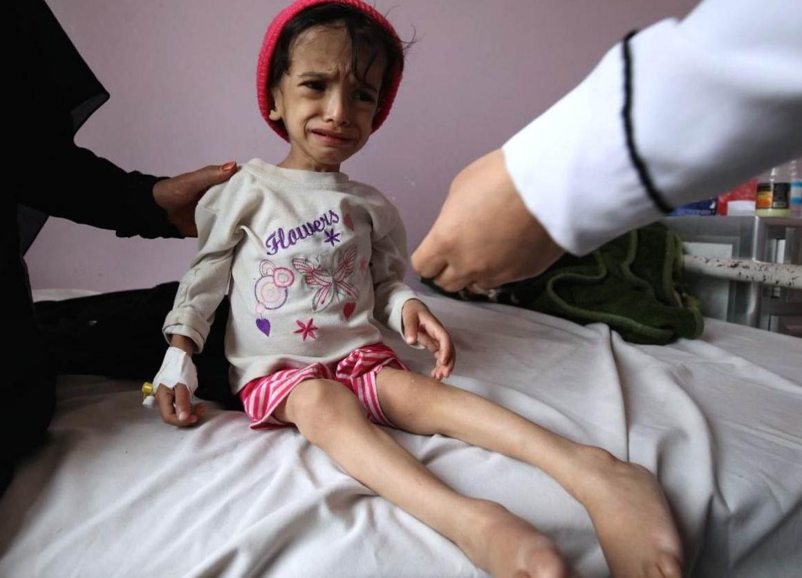 Conflict in Yemen has exposed 320,000 children to severe actue malnutrition (SAM), among them Hanadi who will be 3 in four months but can't walk. UNICEF aims to treat over 170,000 children for SAM in 2016.