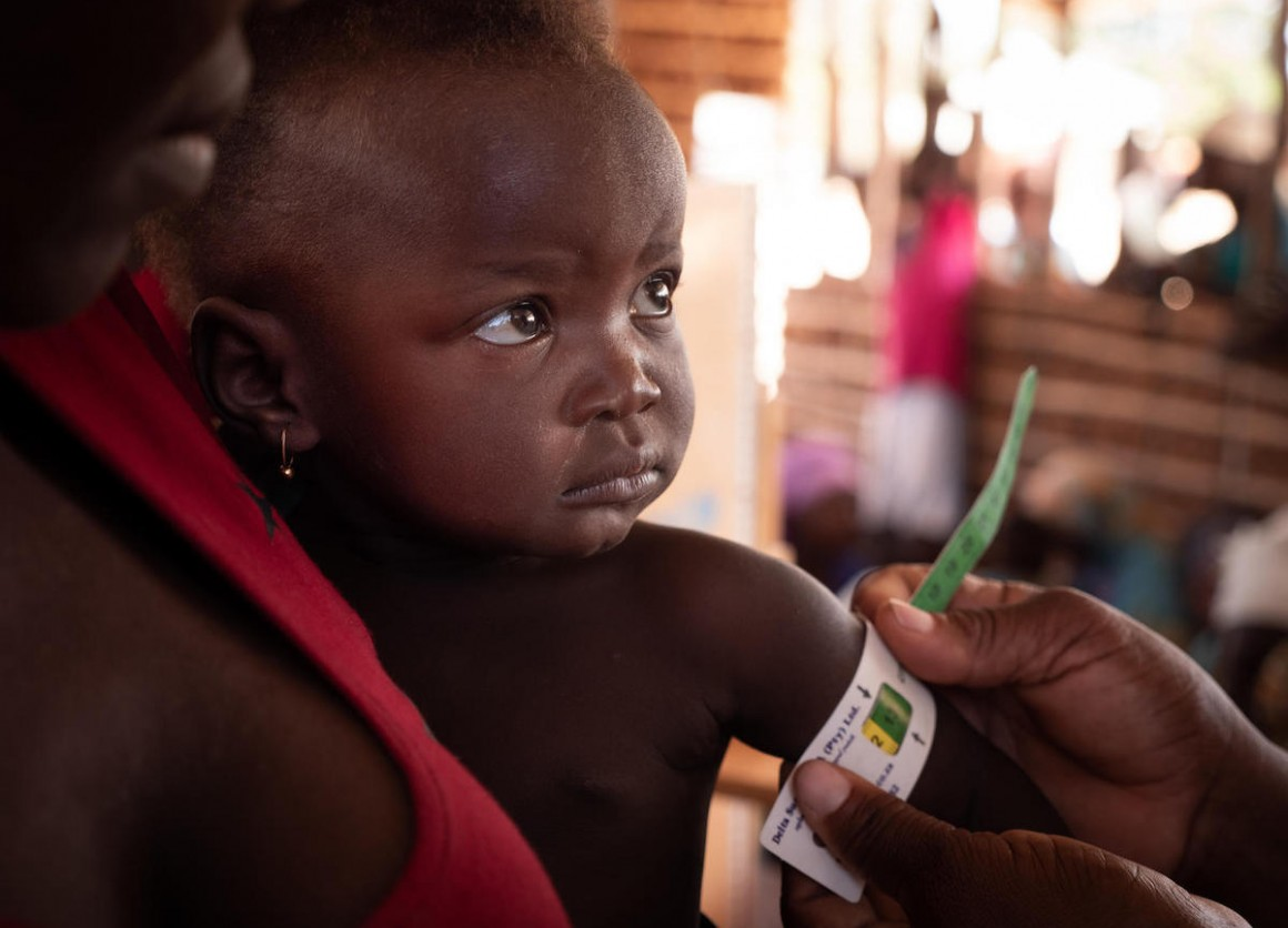 On September 27, 2019, a boy has his mid-upper arm circumference measured by a health worker at a UNICEF-supported community outreach medical center near the village of Mecufi in northern Mozambique.