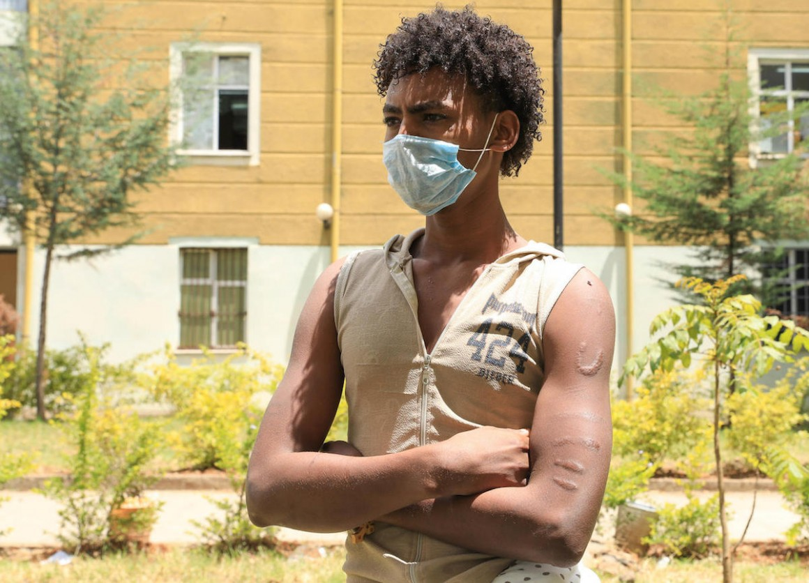 UNICEF helps unaccompanied child migrants like Berhan, 17, who left Ethiopia to find work but was captured by human traffickers in Yemen and held captive for five months.