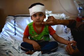 On 25 July 2014 in the State of Palestine, Mohammed Fakhri Naim, 3, sits on a cot in Al-Shifa Hospital in Gaza. © UNICEF/NYHQ2014-1012/d'Aki